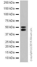 Western blot - Anti-Cytokeratin 7 antibody [EPR17079] (ab199718)