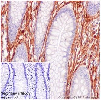 Immunohistochemistry (Formalin/PFA-fixed paraffin-embedded sections) - Anti-Collagen VI antibody [EPR17077] - C-terminal (ab199720)