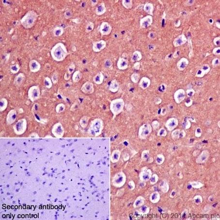 Immunohistochemistry (Formalin/PFA-fixed paraffin-embedded sections) - Anti-CRMP1 antibody [EP14521] (ab199722)