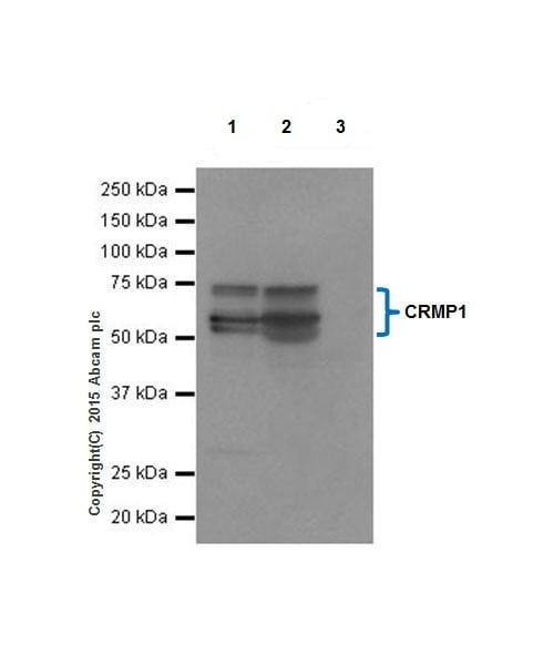 Immunoprecipitation - Anti-CRMP1 antibody [EP14521] (ab199722)