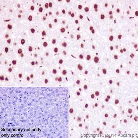 Immunohistochemistry (Formalin/PFA-fixed paraffin-embedded sections) - Anti-HNRPAB antibody [EPR16944] (ab199724)