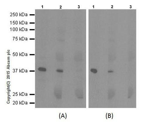 Immunoprecipitation - Anti-NSDHL antibody [EPR14489(2)] (ab199730)