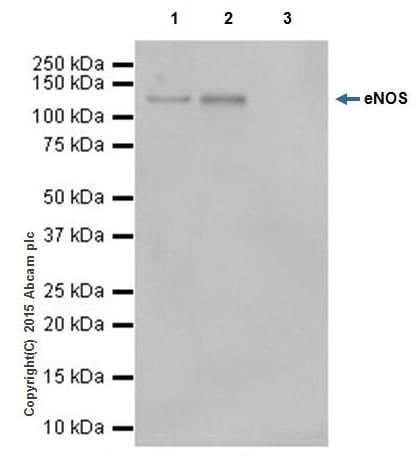 Immunoprecipitation - Anti-eNOS antibody [EPR19296] (ab199956)