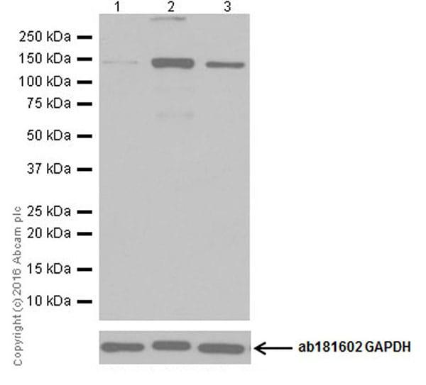 Western blot - Anti-eNOS antibody [EPR19296] (ab199956)
