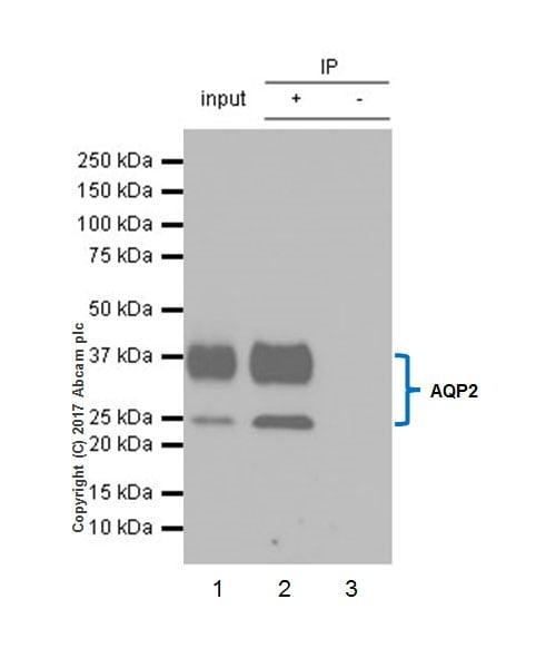 Immunoprecipitation - Anti-Aquaporin 2 antibody [EPR21080] (ab199975)