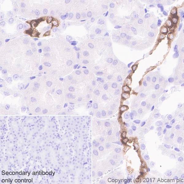 Immunohistochemistry (Formalin/PFA-fixed paraffin-embedded sections) - Anti-Aquaporin 2 antibody [EPR21080] (ab199975)