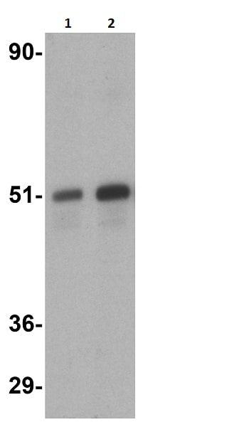 Western blot - Anti-ZIP Kinase antibody (ab2057)
