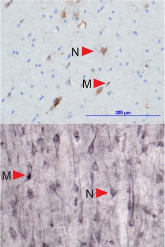 Immunohistochemistry (Frozen sections) - Anti-HLA E antibody [MEM-E/02] (ab2216)