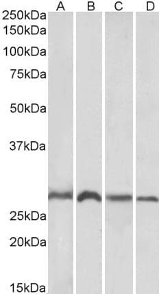 Western blot - Anti-SIAH1 antibody (ab2237)