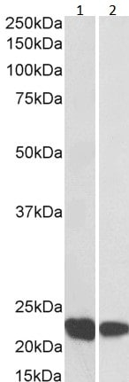 Western blot - Anti-RAC2 antibody (ab2244)