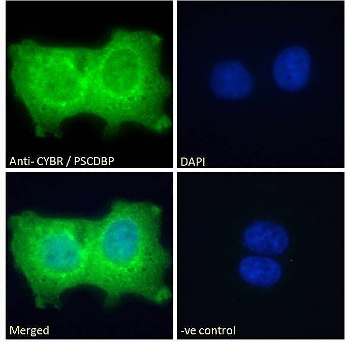 Immunocytochemistry/ Immunofluorescence - Anti-CASP antibody (ab2247)