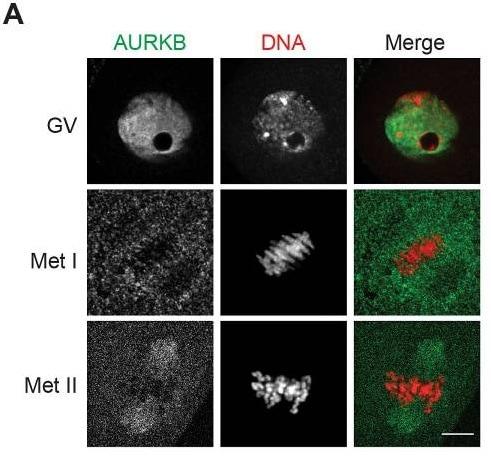 Immunocytochemistry/ Immunofluorescence - Anti-Aurora B antibody (ab2254)