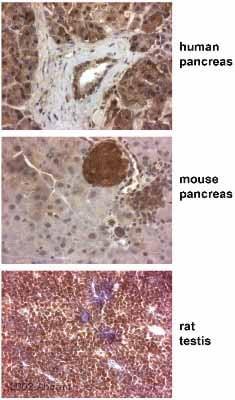 Immunohistochemistry (Formalin/PFA-fixed paraffin-embedded sections) - Anti-Paxillin antibody (ab2264)