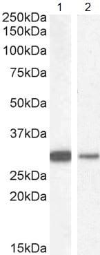 Western blot - Anti-NQO1 antibody (ab2346)