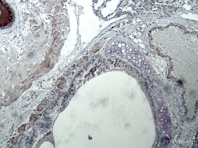 Immunohistochemistry (Formalin/PFA-fixed paraffin-embedded sections) - Anti-VEGF Receptor 1 antibody (ab2350)