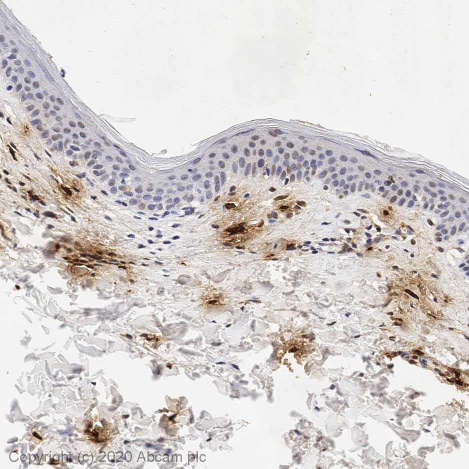 Immunohistochemistry (Formalin/PFA-fixed paraffin-embedded sections) - Anti-Mast Cell Tryptase antibody [AA1] (ab2378)