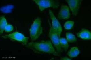 Immunocytochemistry/ Immunofluorescence - Anti-Transglutaminase 2 antibody [CUB 7402] (ab2386)