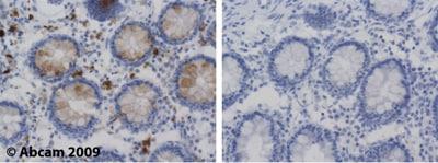 Immunohistochemistry (Formalin/PFA-fixed paraffin-embedded sections) - Anti-Lysozyme antibody (ab2408)