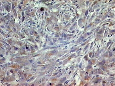 Immunohistochemistry (Formalin/PFA-fixed paraffin-embedded sections) - Anti-Dkk3 antibody (ab2459)