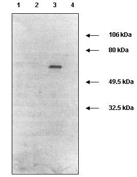 Western blot - Anti-MMP2 antibody [4D3] (ab2462)