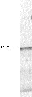 Western blot - Anti-PDPK1 antibody (ab2495)