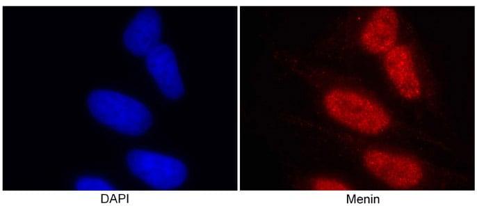 Immunocytochemistry/ Immunofluorescence - Anti-Menin antibody - ChIP Grade (ab2605)