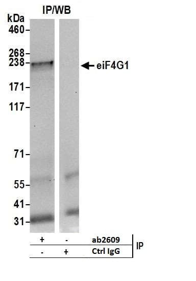 Immunoprecipitation - Anti-eIF4G1 antibody (ab2609)