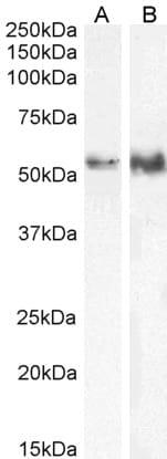 Western blot - Anti-TFEB antibody - ChIP Grade (ab2636)