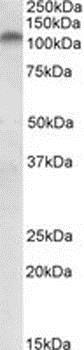 Western blot - Anti-PLK4 antibody (ab2642)