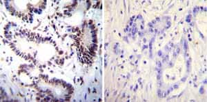 Immunohistochemistry (Formalin/PFA-fixed paraffin-embedded sections) - Anti-NFAT1 antibody [25A10.D6.D2] - ChIP Grade (ab2722)