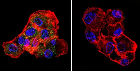 Immunocytochemistry/ Immunofluorescence - Anti-CETP antibody [ATM192] (ab2726)