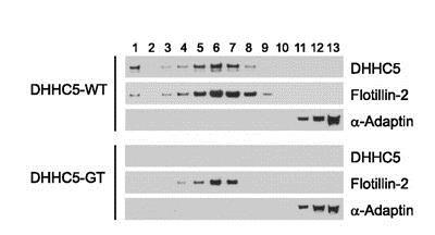 Western blot - Anti-alpha Adaptin antibody [AP6] (ab2730)