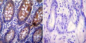 Immunohistochemistry (Formalin/PFA-fixed paraffin-embedded sections) - Anti-Clathrin heavy chain antibody [X22] (ab2731)