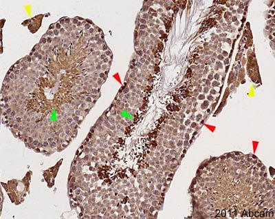 Immunohistochemistry (Formalin/PFA-fixed paraffin-embedded sections) - Anti-mTOR antibody (ab2732)