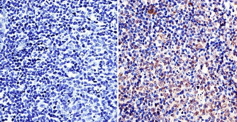 Immunohistochemistry (Formalin/PFA-fixed paraffin-embedded sections) - Anti-LAP1 antibody [RL13] (ab2737)