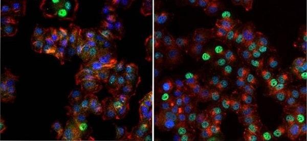 Immunocytochemistry/ Immunofluorescence - Anti-Progesterone Receptor antibody [Alpha PR6] - ChIP Grade (ab2765)