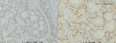 Immunohistochemistry (Formalin/PFA-fixed paraffin-embedded sections) - Anti-Progesterone Receptor antibody [Alpha PR6] - ChIP Grade (ab2765)