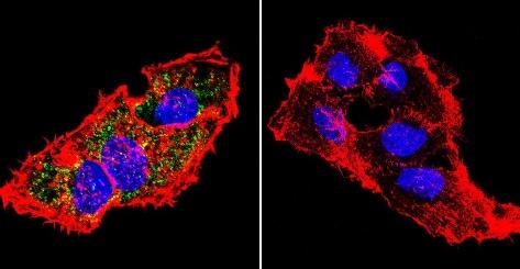 Immunocytochemistry/ Immunofluorescence - Anti-Prolactin Receptor/PRL-R antibody [U5] (ab2772)