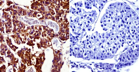 Immunohistochemistry (Formalin/PFA-fixed paraffin-embedded sections) - Anti-Prolactin Receptor/PRL-R antibody [T6] (ab2773)