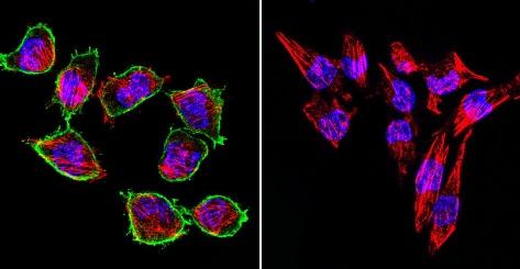 Immunocytochemistry/ Immunofluorescence - Anti-Prolactin Receptor/PRL-R antibody [T6] (ab2773)