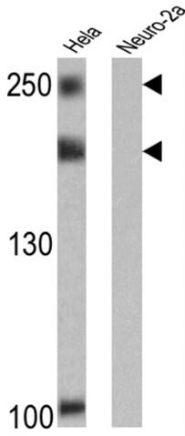 Western blot - Anti-NCOR2/SMRT antibody [1542] (ab2781)
