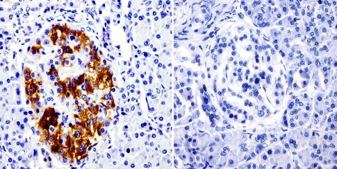 Immunohistochemistry (Formalin/PFA-fixed paraffin-embedded sections) - Anti-SRC3 antibody [AX15.3] - ChIP Grade (ab2782)