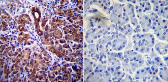 Immunohistochemistry (Formalin/PFA-fixed paraffin-embedded sections) - Anti-CFTR antibody [CF3] (ab2784)