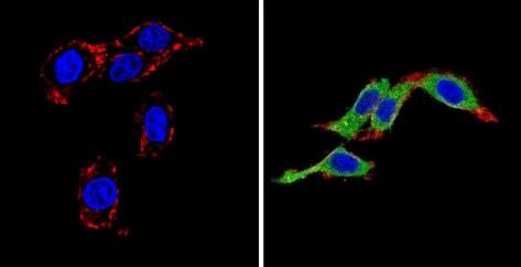 Immunocytochemistry/ Immunofluorescence - Anti-Endothelin 1 antibody [TR.ET.48.5] (ab2786)