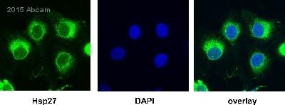 Immunocytochemistry/ Immunofluorescence - Anti-Hsp27 antibody [G3.1] (ab2790)