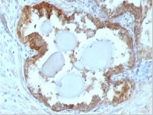 Immunohistochemistry (Formalin/PFA-fixed paraffin-embedded sections) - Anti-Hsp27 antibody [G3.1] (ab2790)