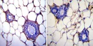 Immunohistochemistry (Formalin/PFA-fixed paraffin-embedded sections) - Anti-GRP94 antibody [9G10] (ab2791)