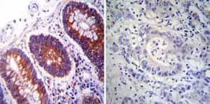 免疫组化(福尔马林/PFA固定石蜡切片)抗P4HB抗体[RL90](AB27 92)