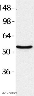 Western blot - Anti-P4HB antibody [RL90] (ab2792)