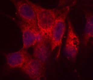Immunocytochemistry/ Immunofluorescence - Anti-P4HB antibody [RL90] (ab2792)